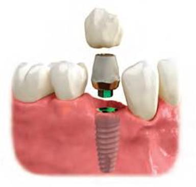 dental implant in Bakersfield
